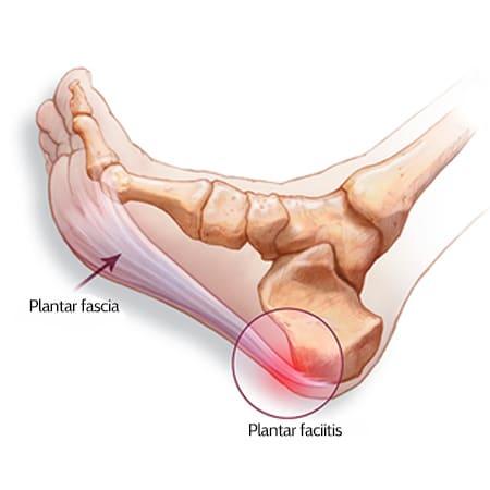 plantar fascia in flexed foot with plantar fasciitis