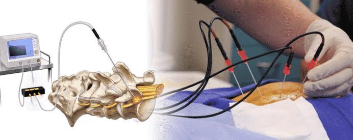 Radiofrequency (RF) Ablation Or Radiofrequency Neurotomy