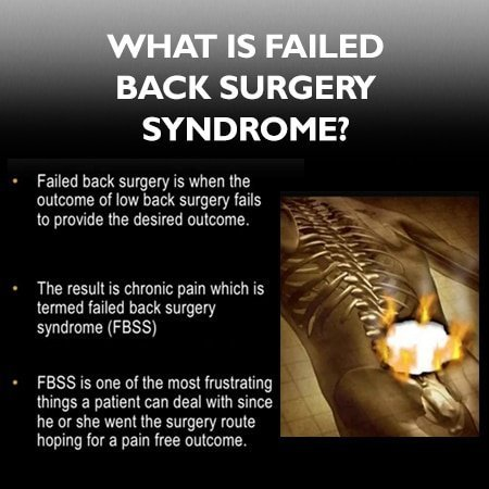 Failed spine surgery definition infographic