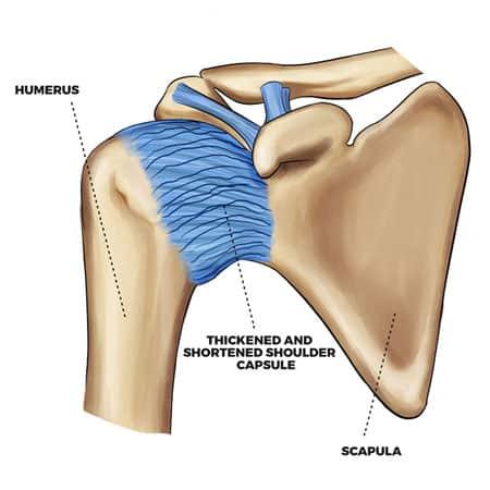 damaged shoulder capsule and ligament cause of frozen shoulder