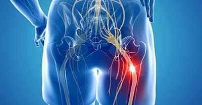 Sciatica pain from Spondylolisthesis