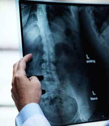Setia Alam chiropractor assessing X-ray