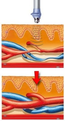 Before and after effects of Shockwave therapy on blood vessels