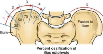 illustration showing risser scoliosis sign