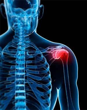 shoulder impingement shown