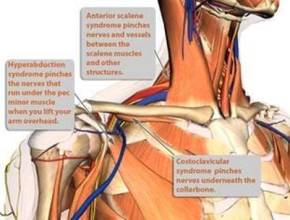 various causes of TOS or thoracic outlet syndrome shown