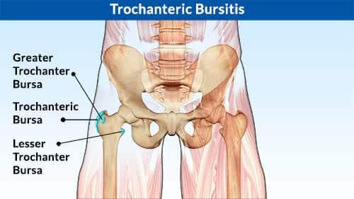 trochanteric bursa, pelvis with the two hip joints