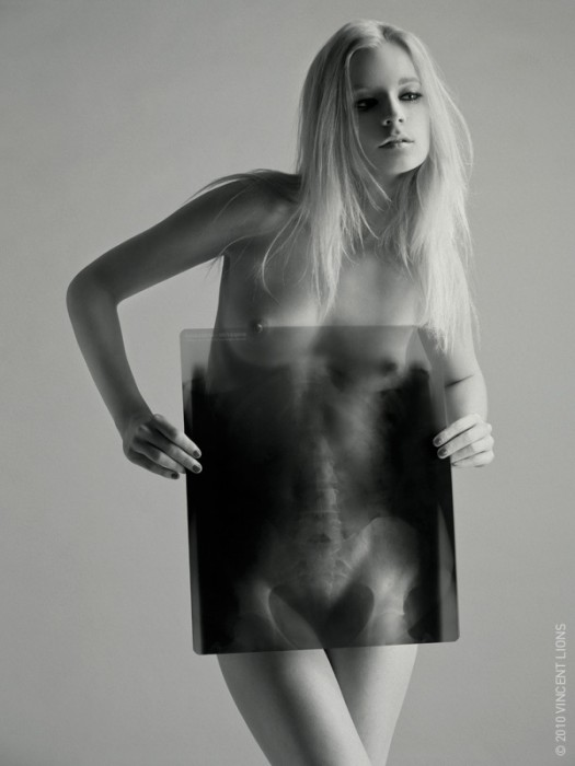 nsfw - nude x-ray