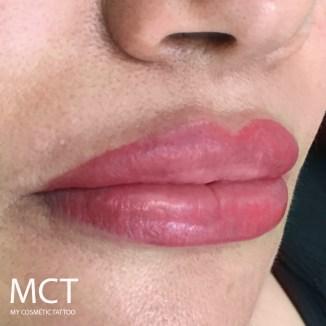 Immediately after full lip tattoo treatment