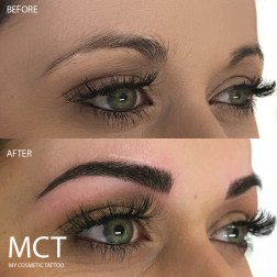 Before and after 3D Brow Feathering tattoo