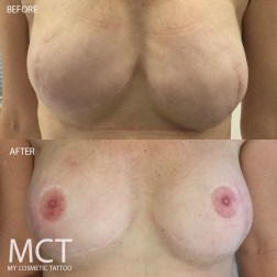 Complete tattoo reconstruction post mastectomy.