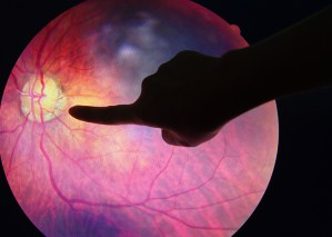 Scientists identify a possible new treatment for diabetic retinopathy