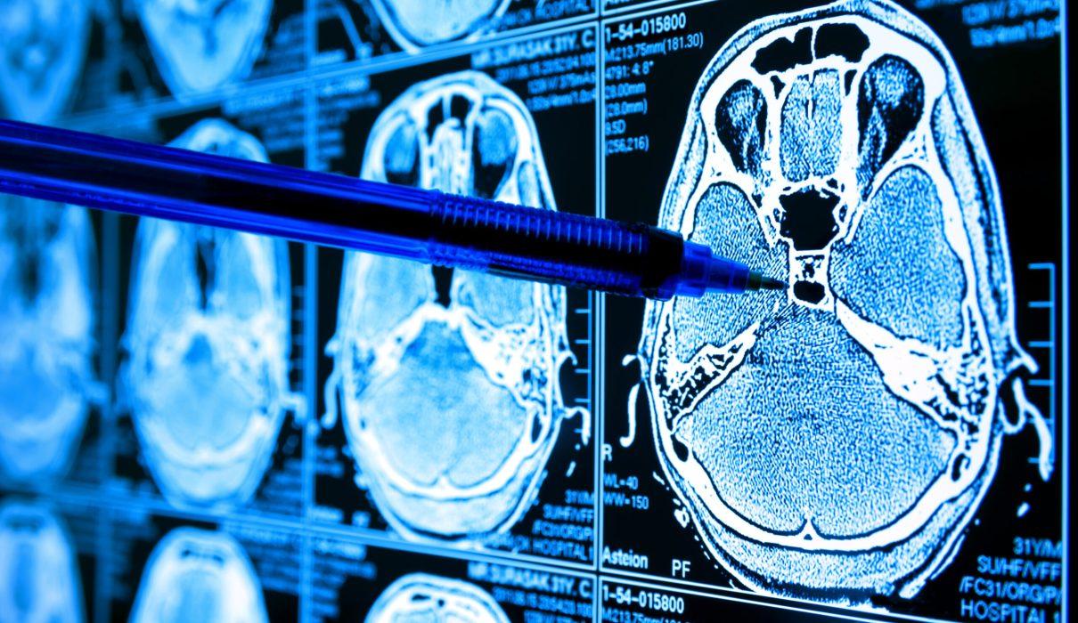 Brain cancer screening