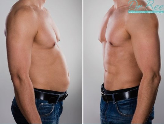 marcation abdominale homme