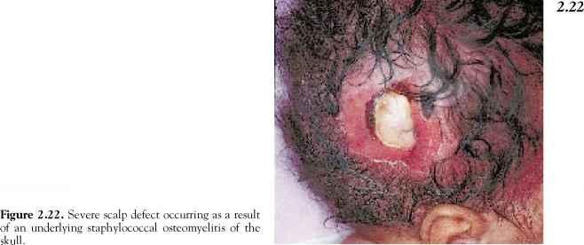 Proteus Mirabilis - Dermatology - My Fertility Guide