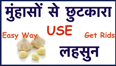 Remove Pimple With Garlic In Hindi