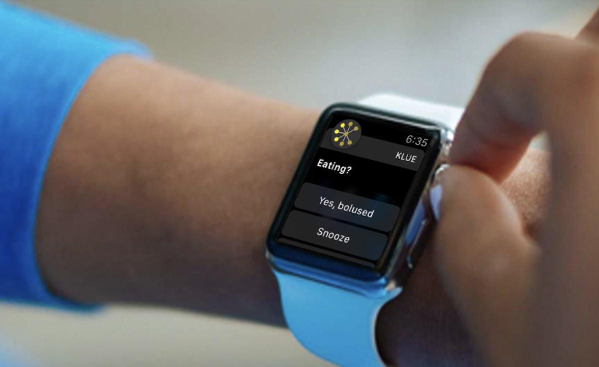 Monitoraggio dell'assunzione di cibo di Apple Watch