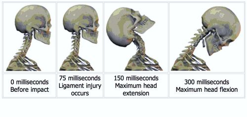 Forms Of Treatment To Consider After A Whiplash Injury