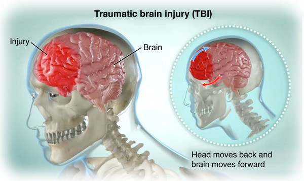 How Hope Health & Wellness can treat Traumatic Brain Injuries