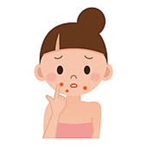 Acne clipart