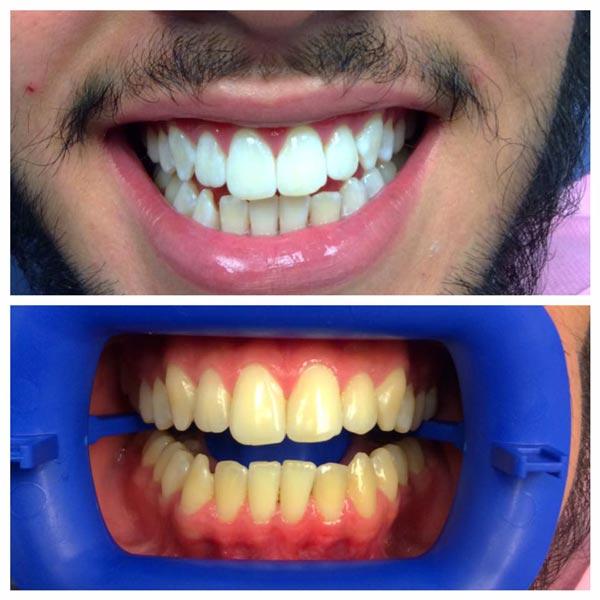 Teeth Whitening Irving TX - Irving Family Dental