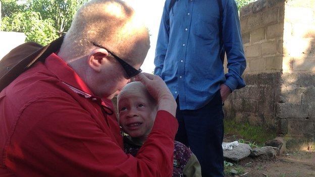 Tanzania bans witch doctors over albino attacks - MyJoyOnline.com