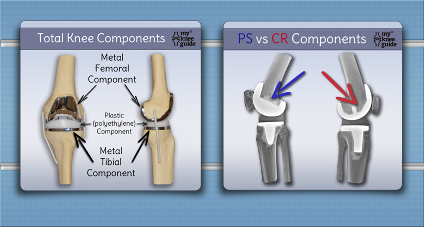 hight resolution of prosthetic knee diagram