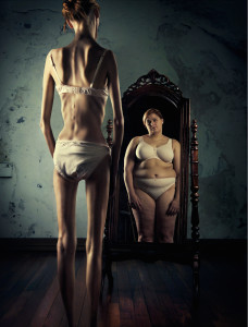 eating disorder, anorexia, bulimia, over eating, binge eating, food, disorder, solution, mynd.works