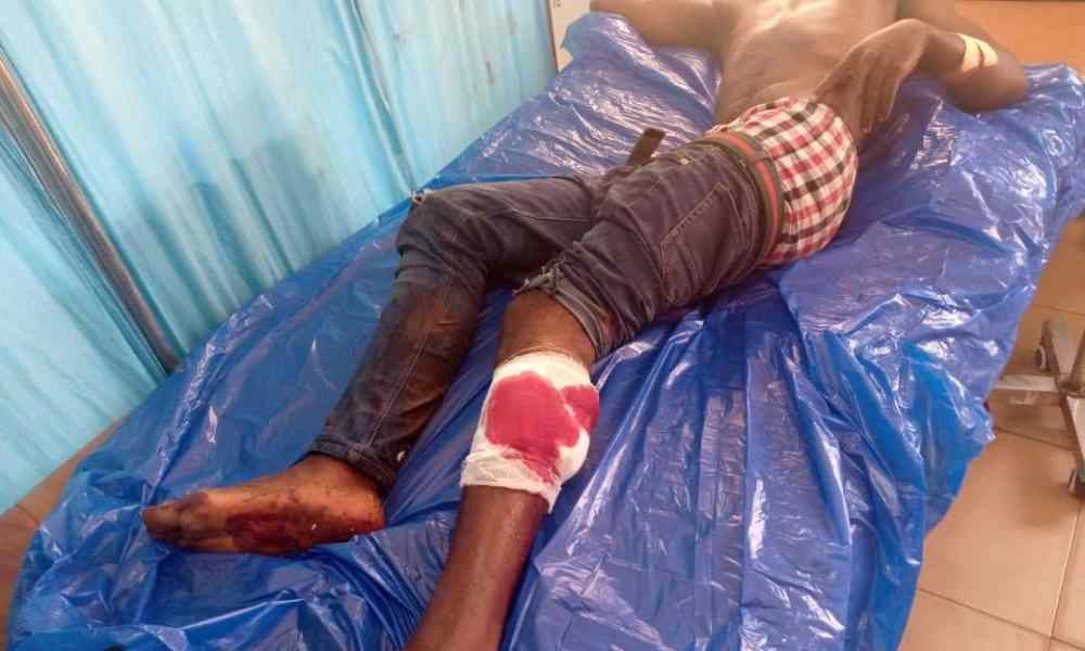 Driver battling for his life after he was shot by armed robbers