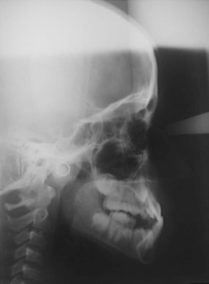 戽斗側顱影像