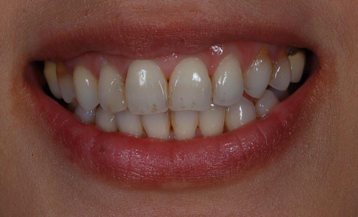 牙齒比例正常,笑齦的原因來自於上顎骨向下增生