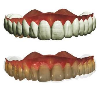 3shape數位假牙設計系統
