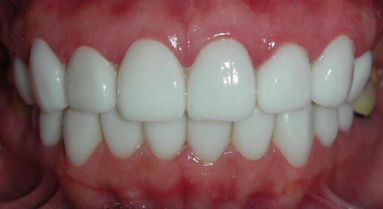 使用不透光瓷塊製作貼片,齒色變白但沒有層次不自然,牙齦部分紅腫.