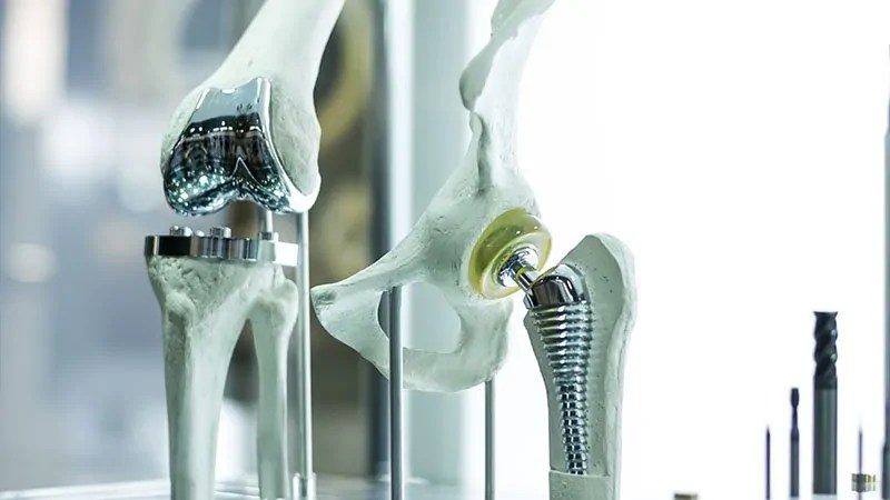 orthopedic-education-occupational-therapy