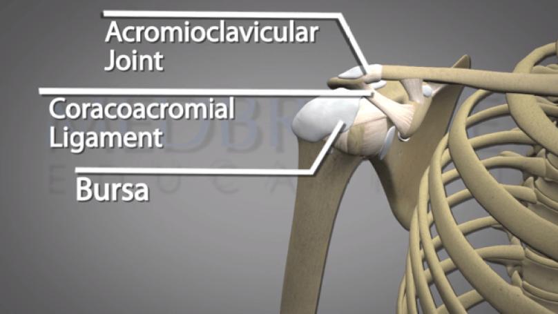 shoulder-hemiplegia2