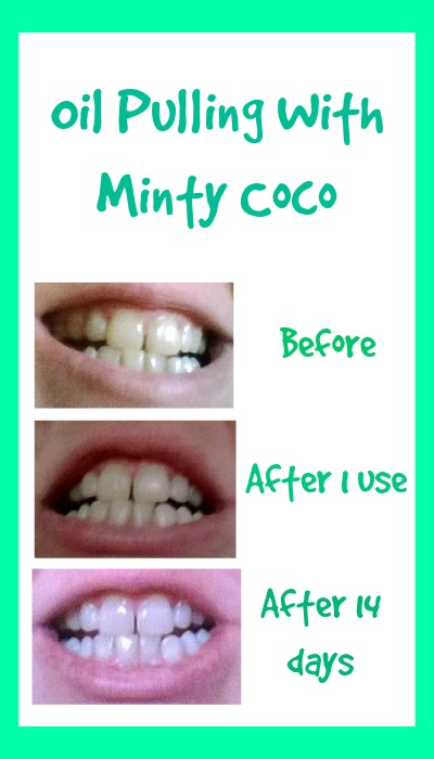 How To Get Rid Of Mouth Bacteria Naturally