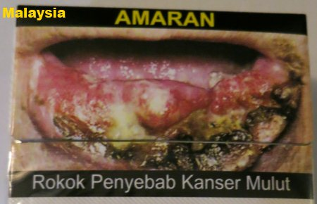 Cigarette Warning (Malaysia): mouth cancer