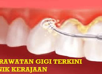 Caj Rawatan Gigi Klinik Kerajaan Naik