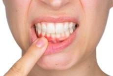 woman indicates gum irritation