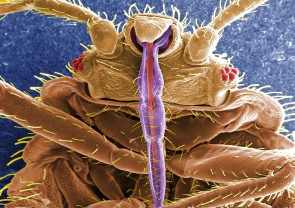 A bedbug, as seen under a scanning electron microscope. The insect's blood-sucking mouthparts show up in purple. Although bedbugs live on blood, there is no evidence they can effectively spread blood borne disease. Aside from the stigma associated with th
