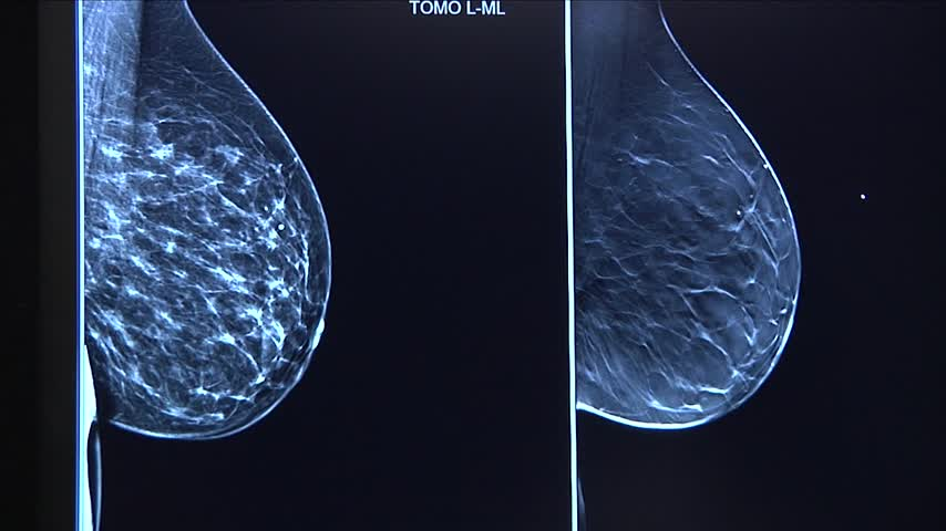 Guthrie catching breast cancer at earlier rates_46319548