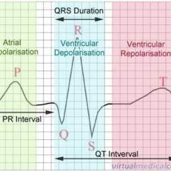 Labeled Ekg Diagram Cycle Of Abuse Ecg Electrocardiogram Heartbeat Monitoring Information Myvmc