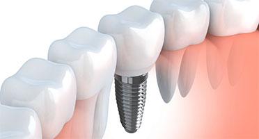 dental implants albertville alabama
