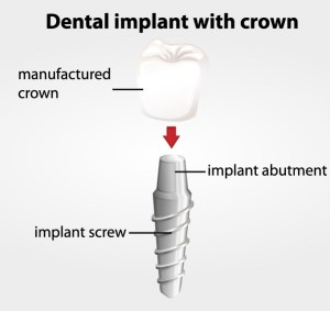 Dental Implants Gadsden AL