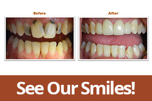 Cosmetic Dentist Smile Gallery