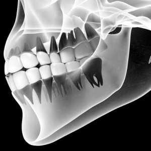 bone grafts sinus lifts