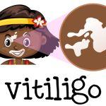 Therapeutic Tattoos For Vitiligo And Leukoderma