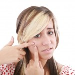 3 Actions To Avoid When You Have Acne