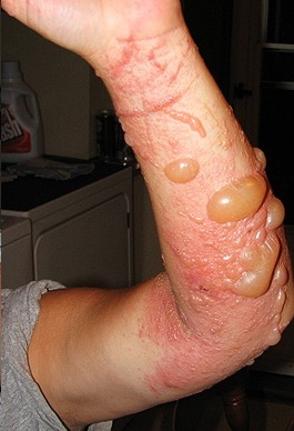 Poison ivy rash and blisters
