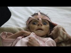 مؤسسة ندى   Five-month old babies dying of starvation and daily airstrikes, ITV News Corresp…